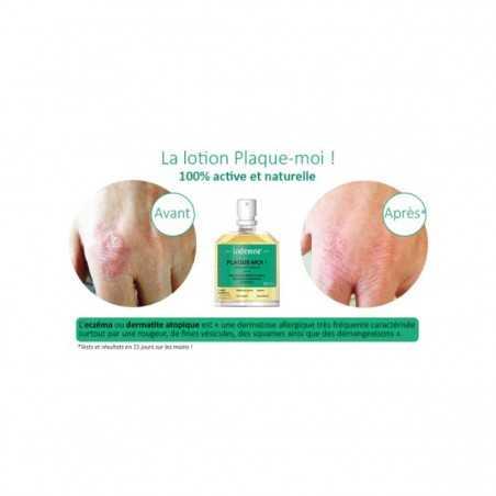 Indemne - Lotion apaisante - Plaque-moi ! - Vegan & Bio - Select store Cosmétiques Vegans